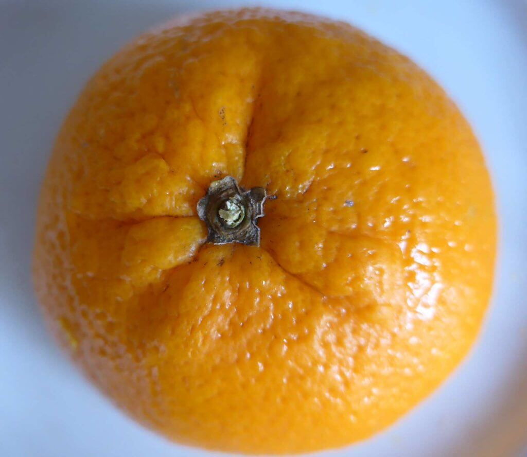 Wasser im Bindegewebe Orangenhaut