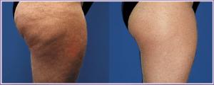 Anti Cellulite vorher-nachher