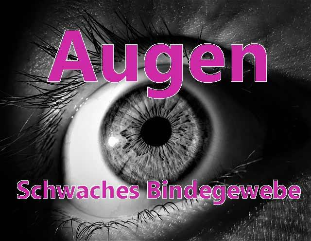 Schwaches Bindegewebe Augen können betroffen sein Erklärungen vom Augenarzt